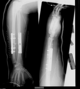 Arm x-ray for medical malpractice