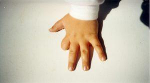 Child's hand injury